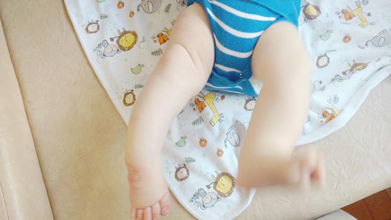 """stopa po 3. opatrunku gipsowym. Taki """"pałąk"""" z piszczela. Nienaturalnie to wygląda nawet jak na fizjologiczne krzywizny nóg niemowalków."""
